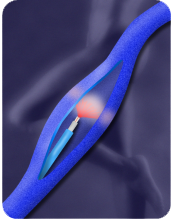 tratamentul varicozei varicoase laser makhachkala
